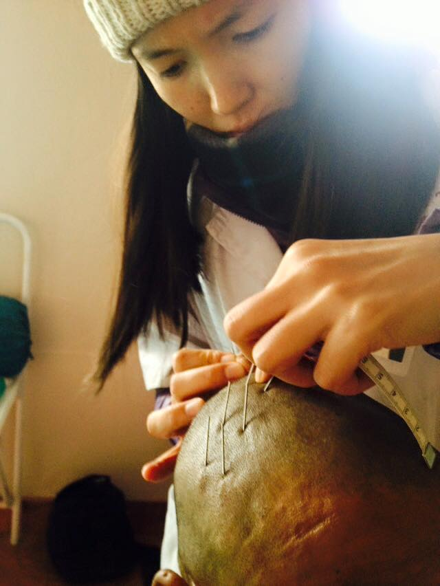 A photo of Rachel applying scalp acupuncture